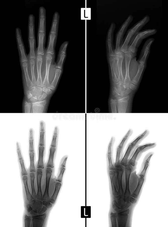 Radiografía de la mano Muestra la fractura de la base del falange próximo del quinto finger de la mano izquierda positivo Negativ imagen de archivo libre de regalías