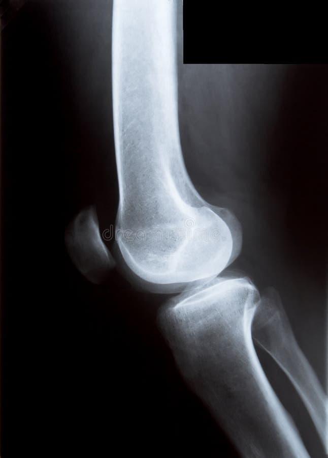 Radiografía de la rodilla fotos de archivo libres de regalías