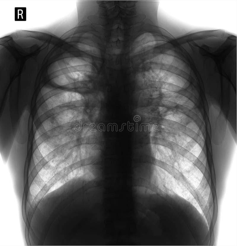 Radiografía de los pulmones Fibrosis pulmonar Tuberculosis del poste Negativo foto de archivo libre de regalías