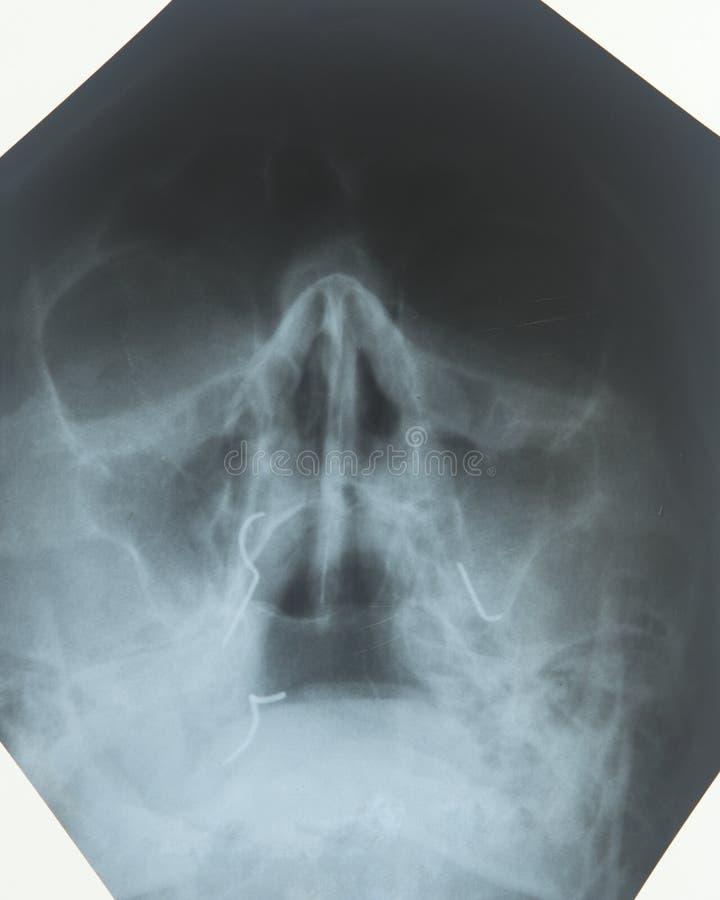 Radiografía De Los Sinos De La Nariz Foto de archivo - Imagen de ...