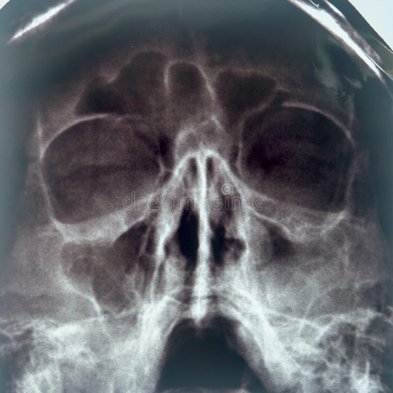 Radiografía de los sinos de la nariz foto de archivo libre de regalías