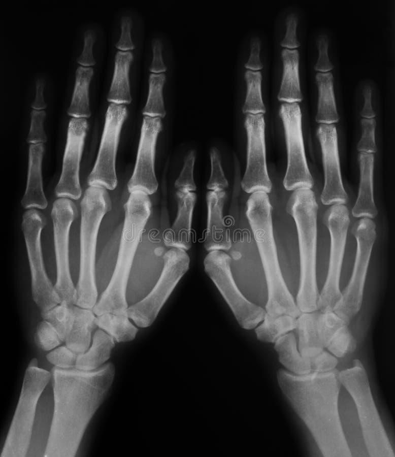 Radiografía de manos fotos de archivo libres de regalías