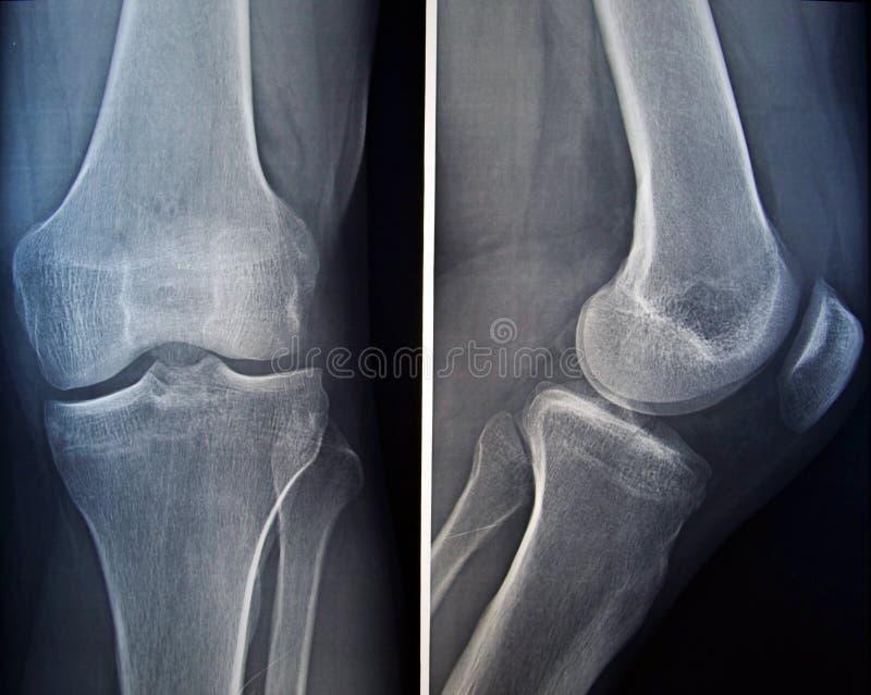 Radiografía de una rodilla imagen de archivo