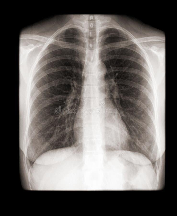 Radiografía de una vista delantera del pecho humano fotografía de archivo libre de regalías