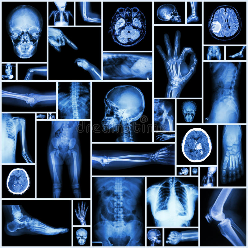 Radiografía de varias partes de ser humano libre illustration
