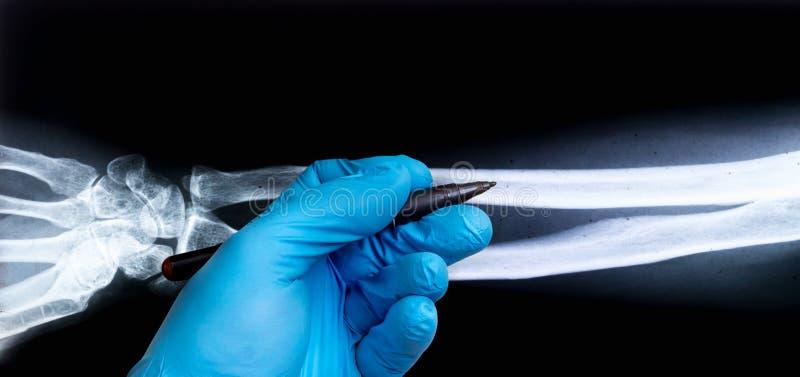 Radiografía del brazo humano con la mano del doctor en guante fotografía de archivo libre de regalías
