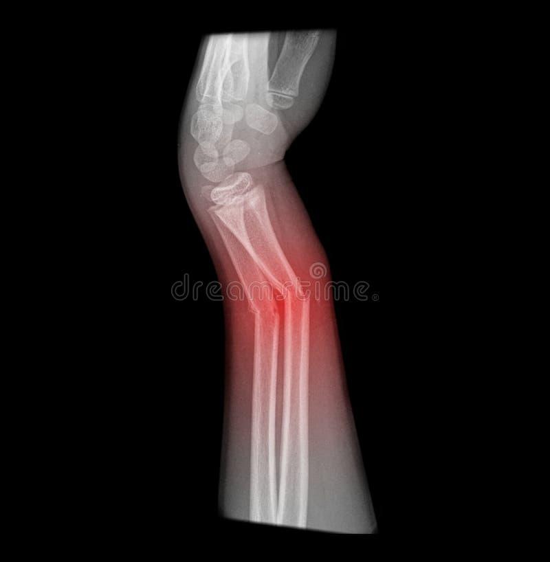 Radiografía del brazo quebrado imágenes de archivo libres de regalías