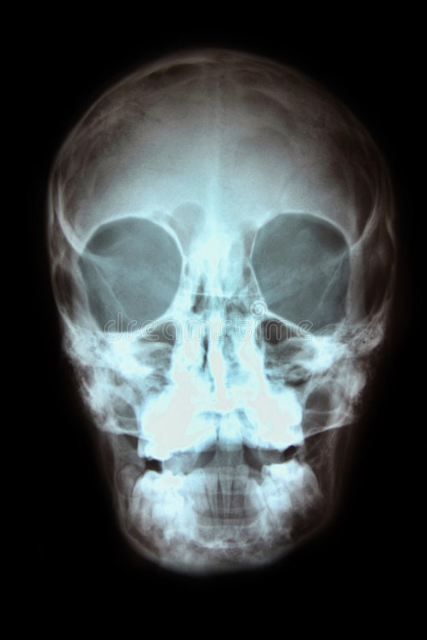 Radiografía del cráneo fotos de archivo