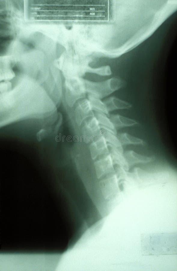 Radiografía del cuello   fotografía de archivo
