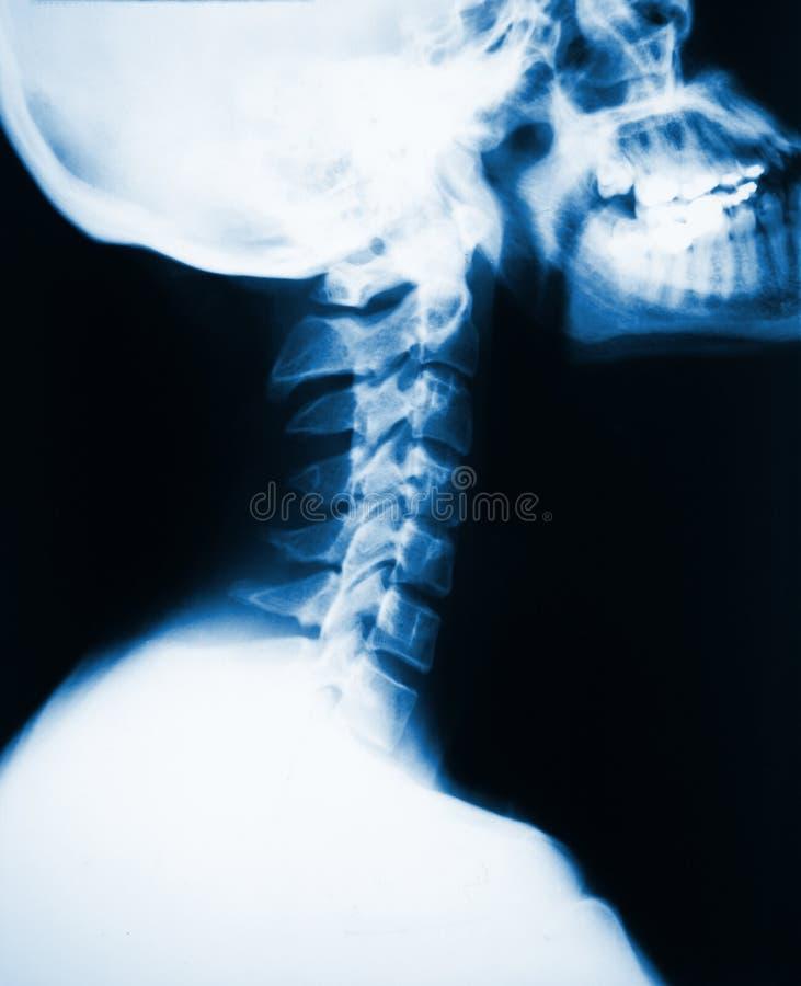 Radiografía del cuello fotos de archivo libres de regalías