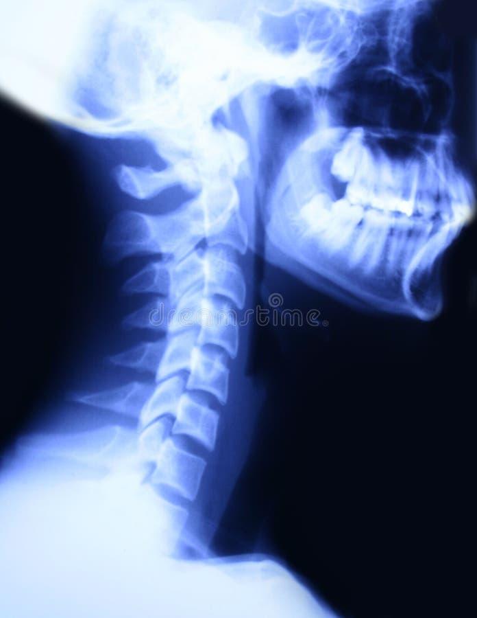 Radiografía del cuello y del cráneo imágenes de archivo libres de regalías