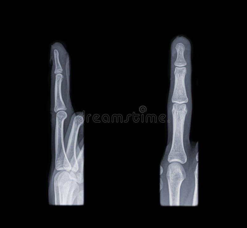 Radiografía del dedo fotos de archivo