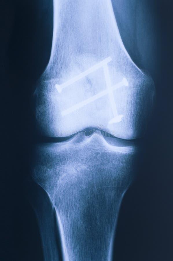 Radiografía del frente de la rodilla foto de archivo libre de regalías
