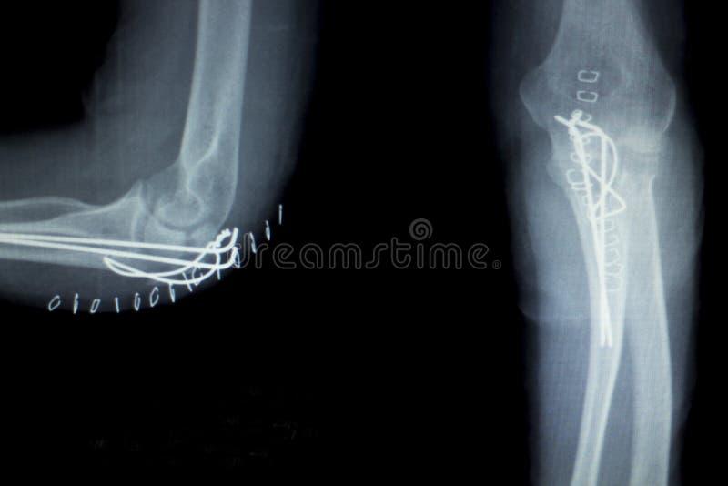 Radiografía del implante de la junta de codo fotografía de archivo