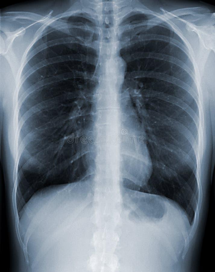 Radiografía del pecho fotos de archivo libres de regalías