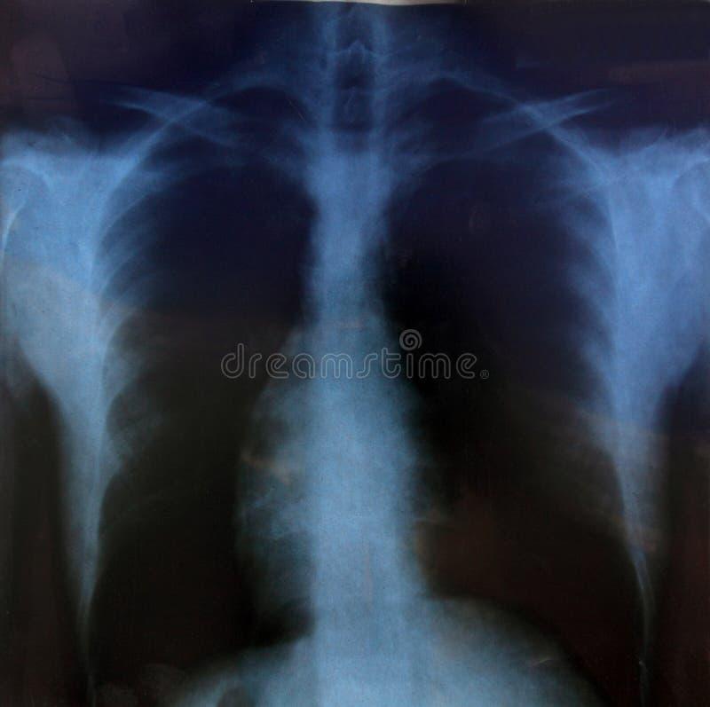 Radiografía del pecho imagen de archivo libre de regalías