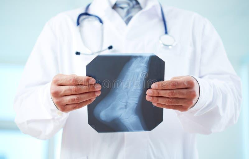 Radiografía del pie imágenes de archivo libres de regalías