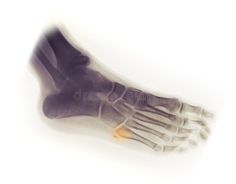 Radiografía del pie, fractura de la avulsión del 5to metatarso foto de archivo libre de regalías