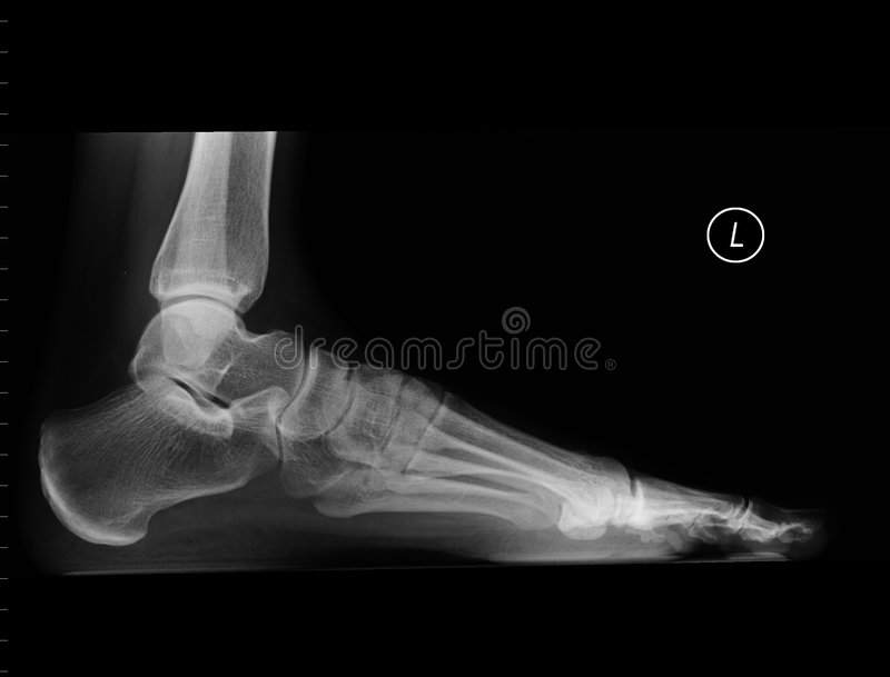 Radiografía del pie izquierdo imagen de archivo