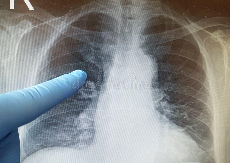 Radiografía del pulmón imagenes de archivo
