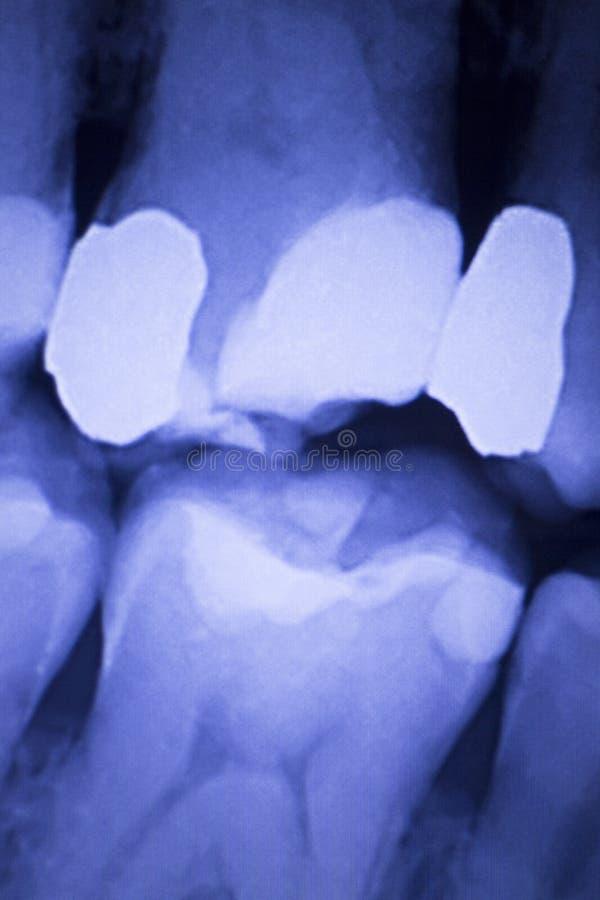 Radiografía dental de los dientes de los dentistas imagen de archivo libre de regalías
