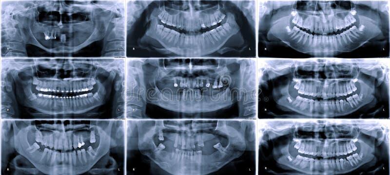 Radiografía dental panorámica foto de archivo libre de regalías