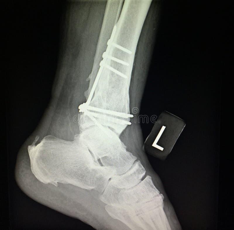 Radiografía distal del tratamiento de la fractura de la tibia izquierda del tobillo foto de archivo