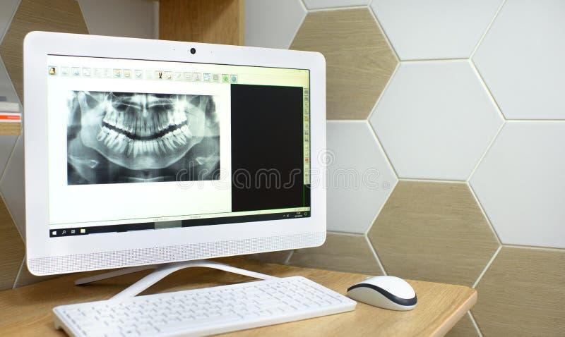 Radiografía en foto de la odontología de un diente Monitor del ordenador imágenes de archivo libres de regalías