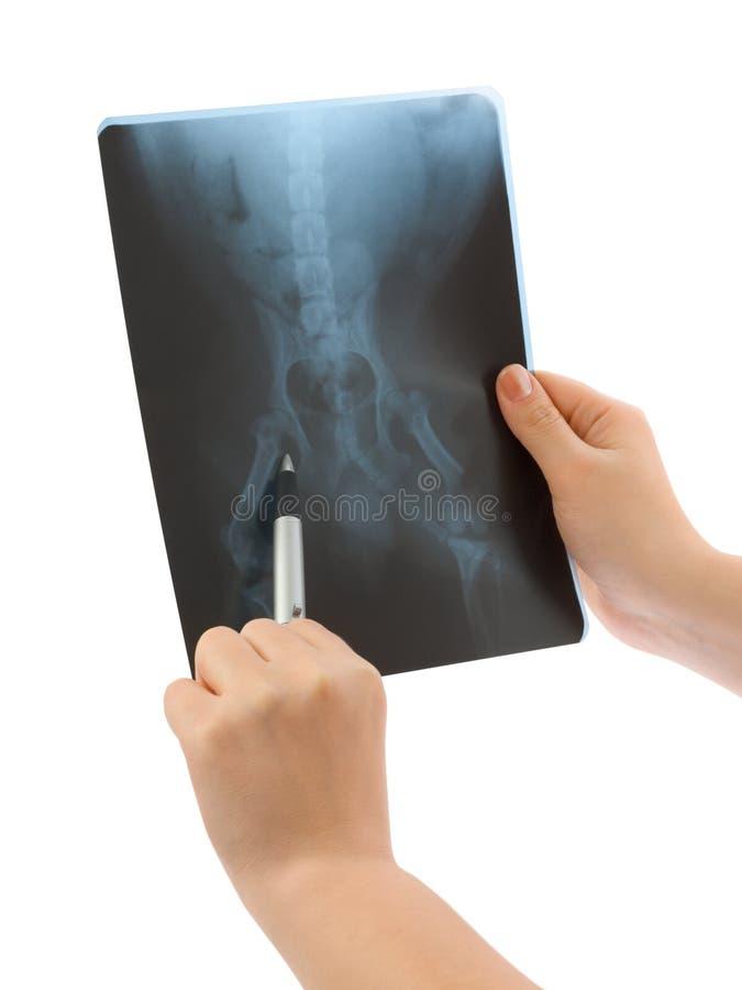 Radiografía en manos foto de archivo libre de regalías