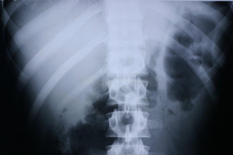 Radiografía/espina dorsal 3 imágenes de archivo libres de regalías