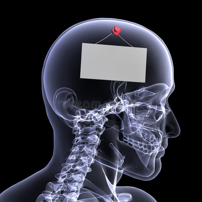 Radiografía esquelética - hacia fuera al almuerzo ilustración del vector