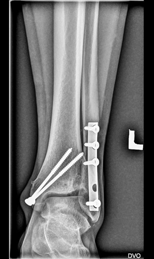 Radiografía médica del pie, huesos más bajos del miembro, tobillo roto, peroné de la tibia con los tornillos imagen de archivo libre de regalías