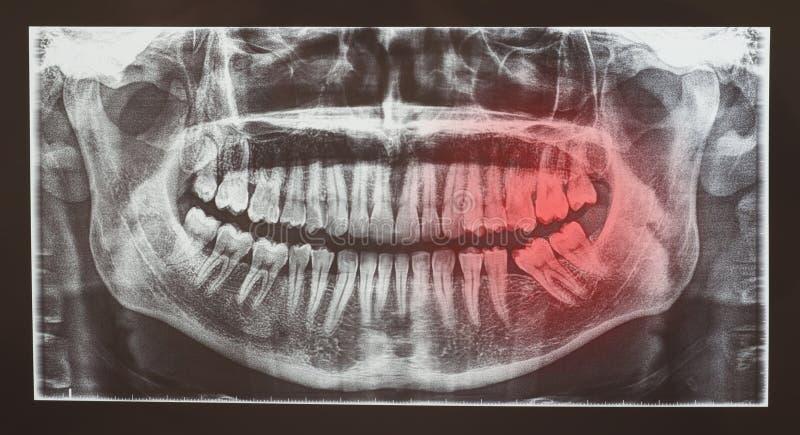 Radiografía médica o radiología del examen dental de los dientes fotografía de archivo