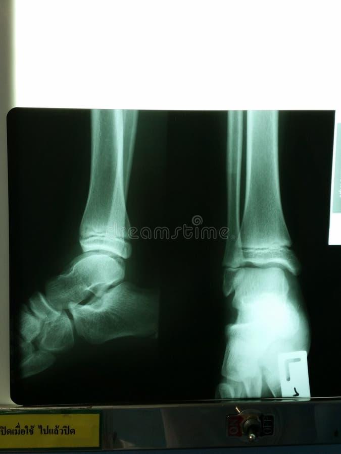 radiografías del pie foto de archivo