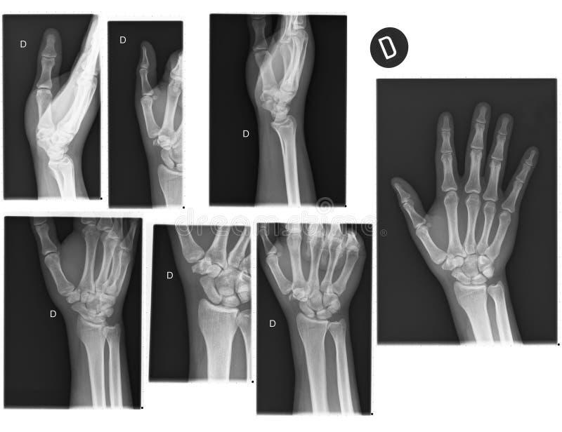 Radiografías reales de la mano y de la muñeca fotografía de archivo