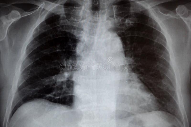 Radiograf?a del pecho fotografía de archivo libre de regalías