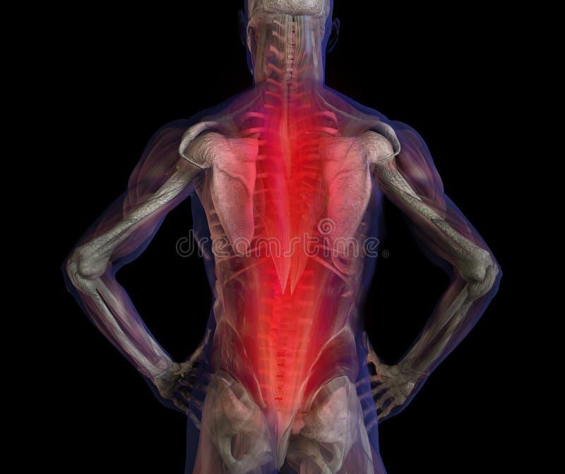 Radiografe a ilustração da dor humana masculina da dor traseira. ilustração royalty free