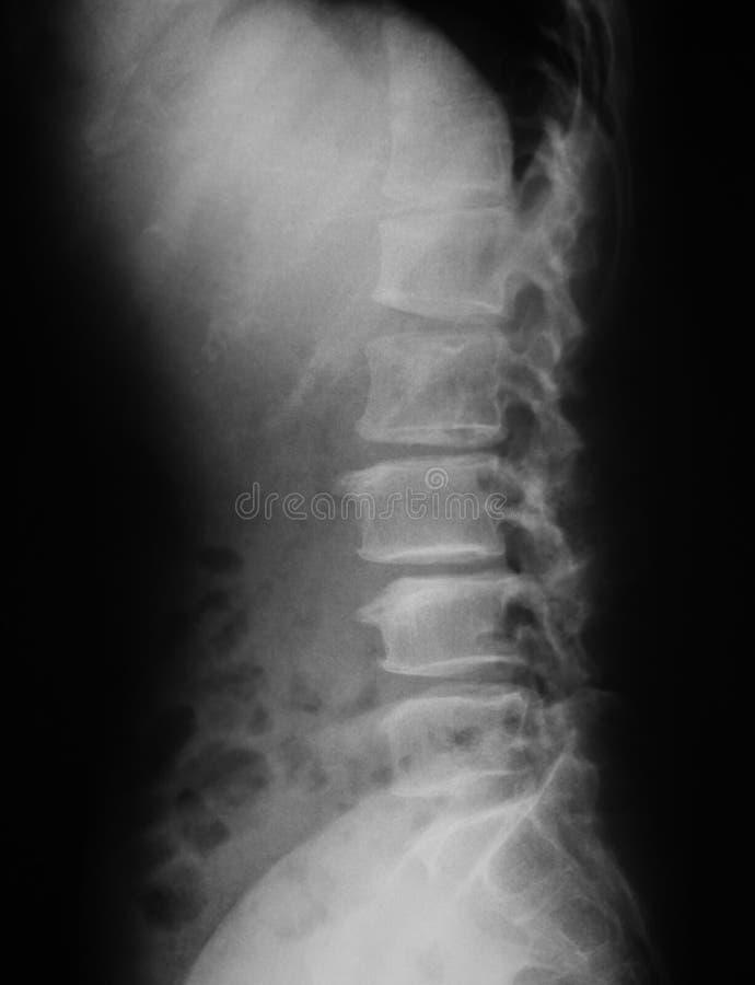 Radiografe a imagem da espinha lombar, opinião do AP imagens de stock