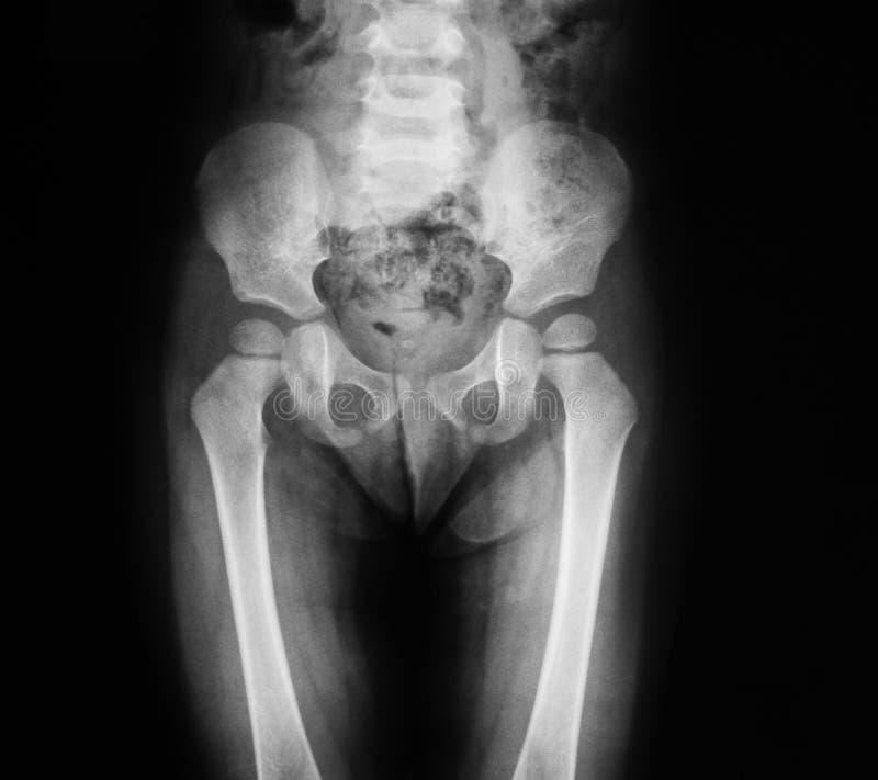 Radiografe a imagem de pélvico e de anca, opinião do AP foto de stock