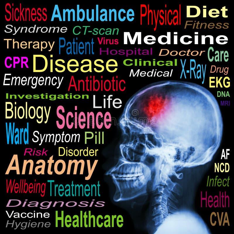 Radiografe o crânio e o curso e nuvem médica da palavra ilustração royalty free