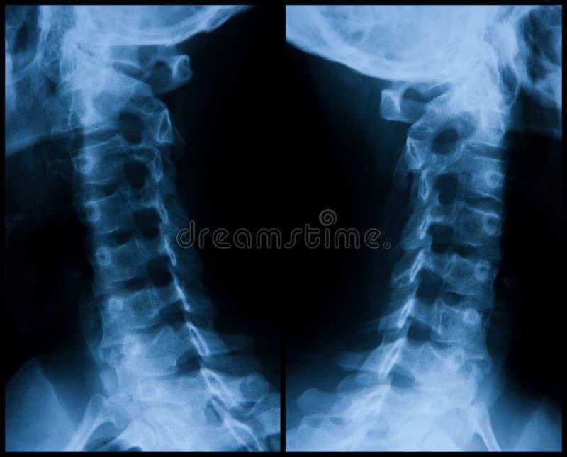 Radiografia cervicale - destra e sinistra immagine stock