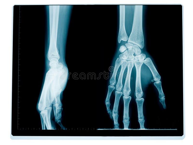 Radiografia da mão e do pulso imagens de stock