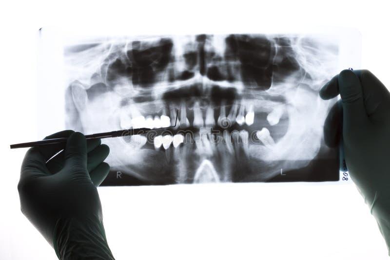 Radiografie stock afbeeldingen