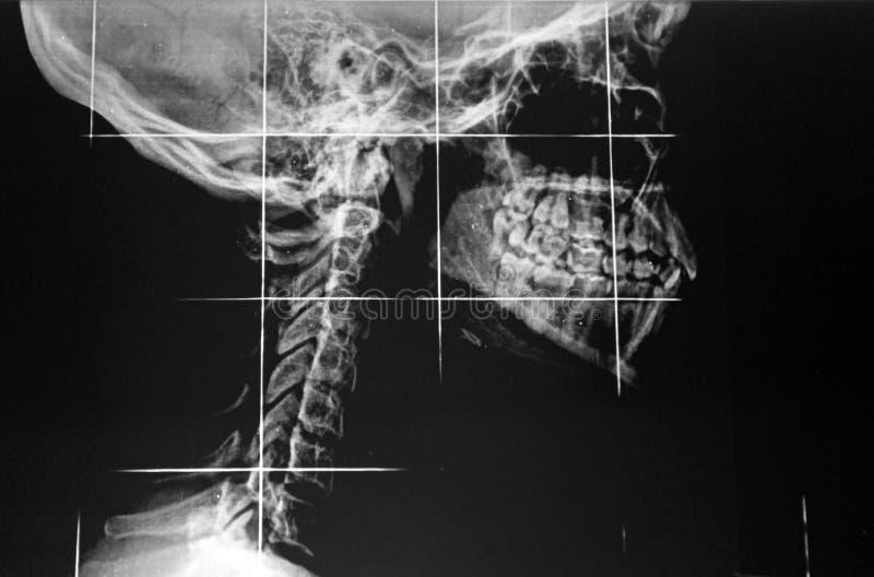 Radiografie stock afbeelding