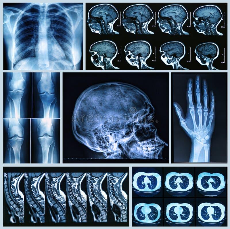 Radiografie van Menselijke Beenderen stock foto