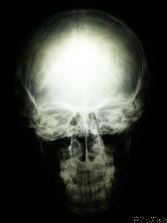 Radiografie van schedel stock foto's
