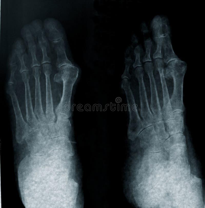 Radiografie van voet stock afbeelding
