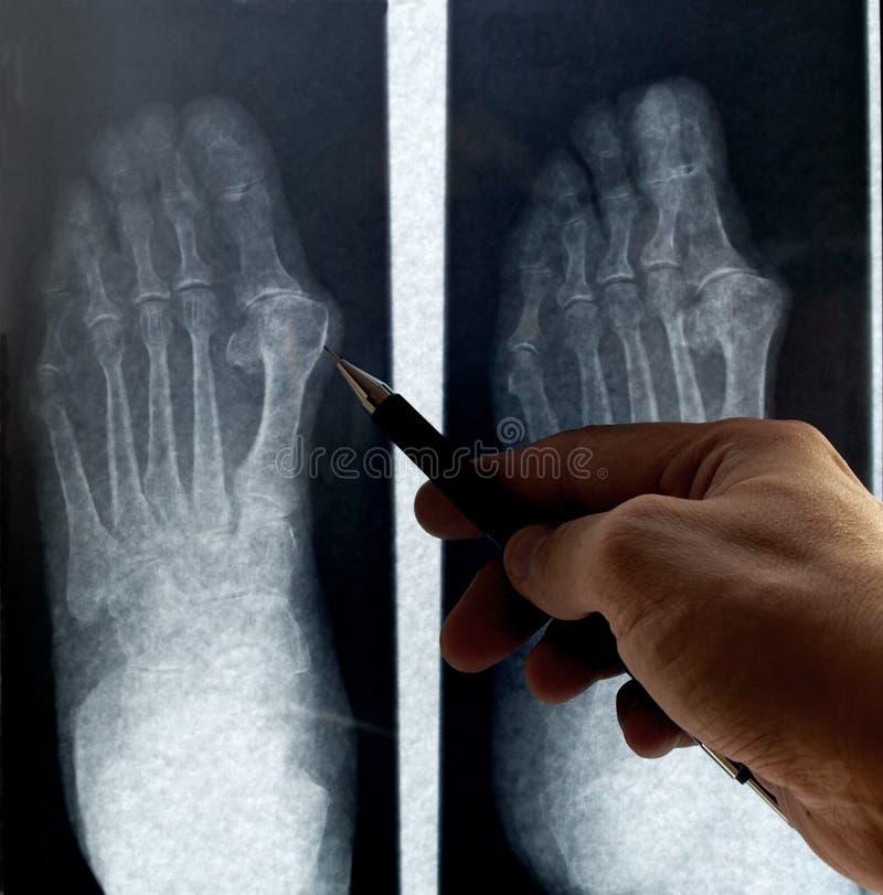 Radiografie van voet stock foto's