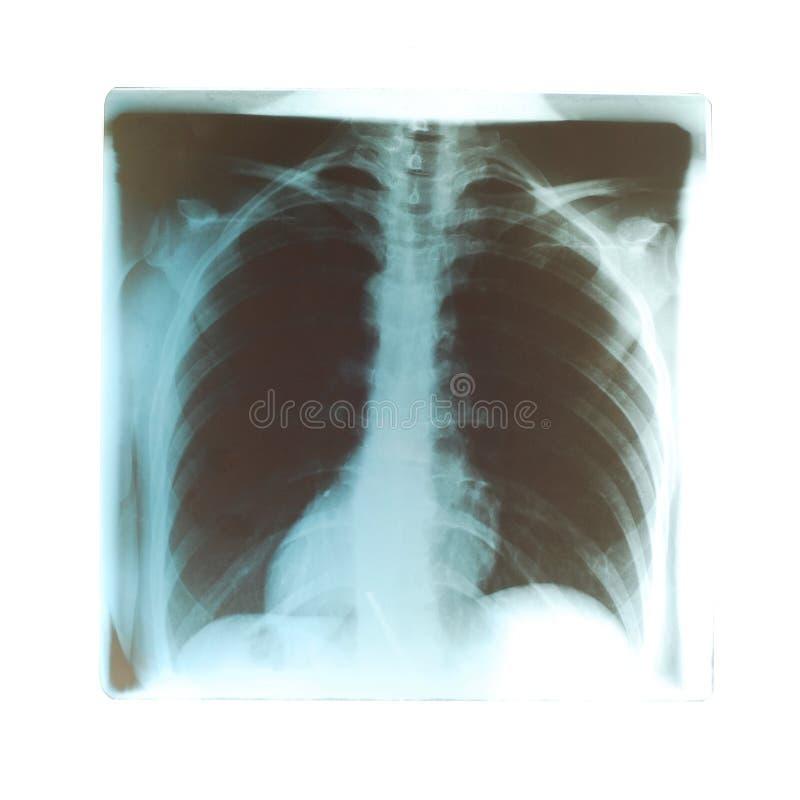 Radiogram de poumons images libres de droits