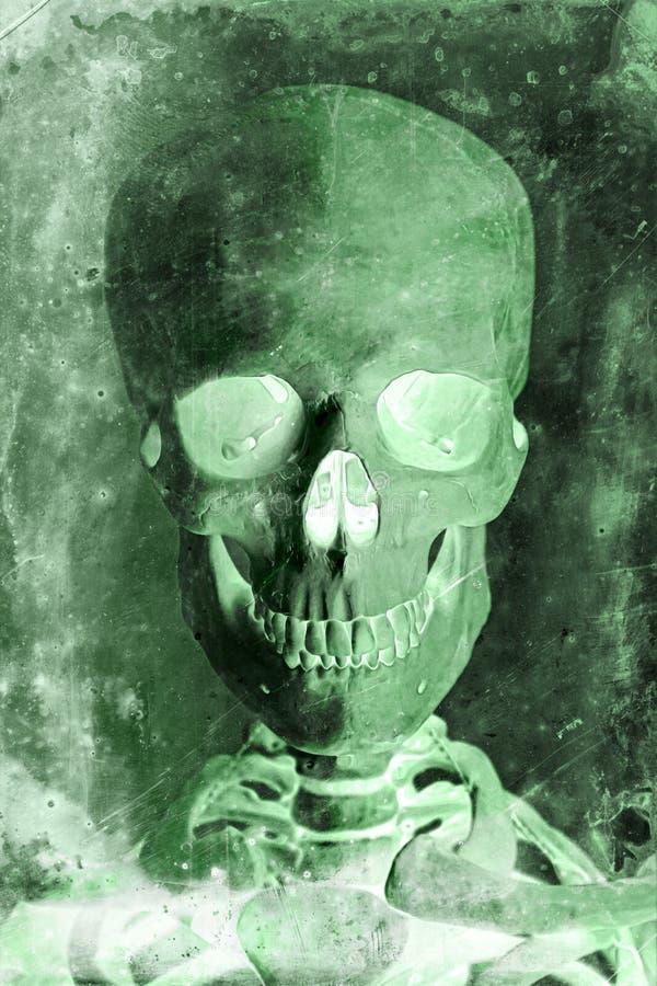 Radiogram Ludzka czaszka fotografia stock